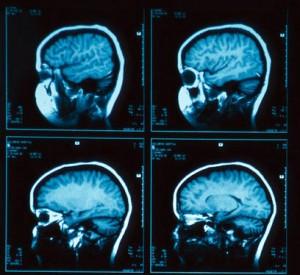 conversie brein overtuigen